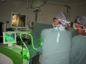 bez-operazii