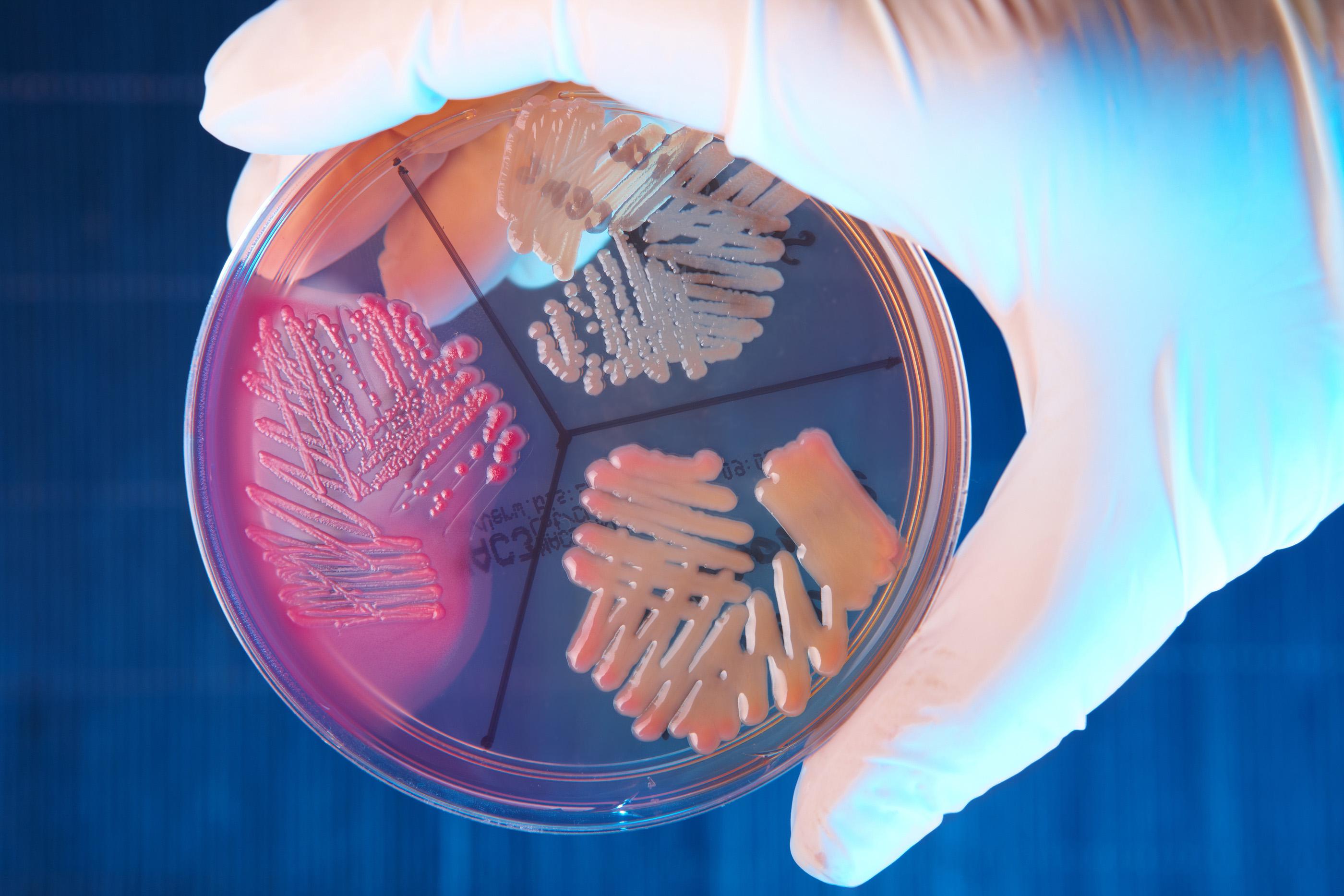 эпидермальный стафилококк в посеве мочи при беременности