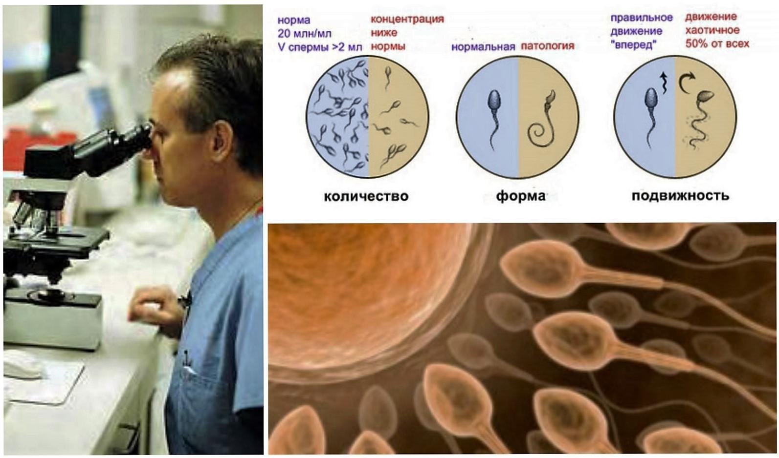 Нормоспермия