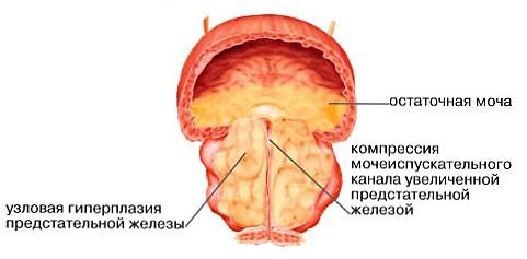 Аденома простаты у мужчин симптомы лечение операция