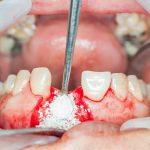Разновидности гениопластики, кому она показана и возможны ли осложнения