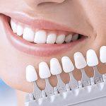 О протезировании зуба