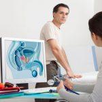 Рак предстательной железы: диагностика, лечение