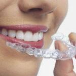 Лечение пародонтита зубов и десен